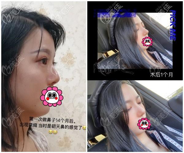 张龙鼻修复案例