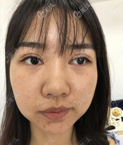 深圳南雅医疗美容整形门诊部张颖杰术前照片1
