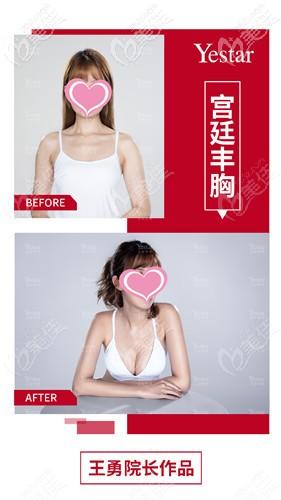 深圳艺星整形王勇院长隆胸案例