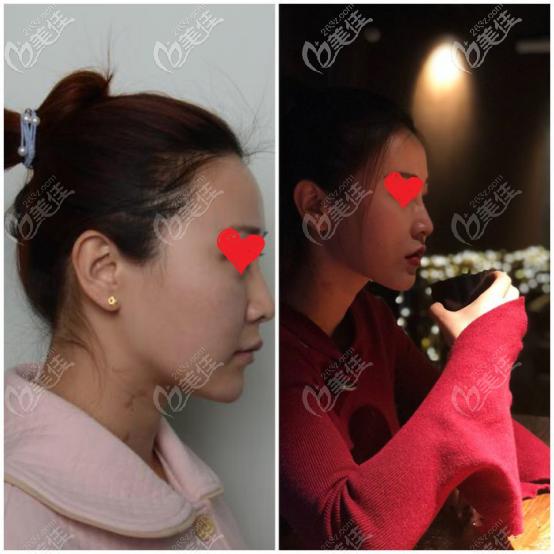 侧面的颧弓术前术后对比