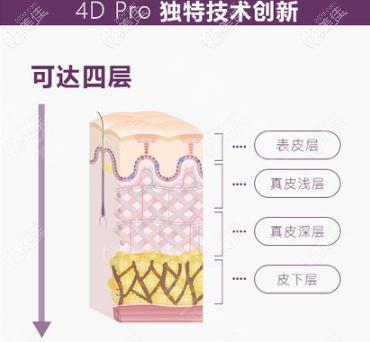 Fotona4Dpro在技术上的优势
