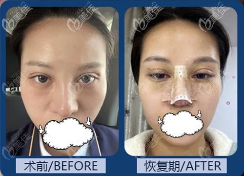 四川东篱整形医院做鼻综合手术(自体肋软骨加韩氏生科一段)案例效果