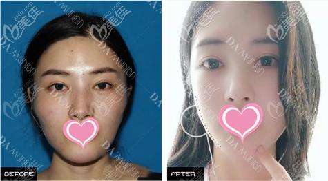 上海愉悦美联臣医疗美容医院曹栋弼术后照片1