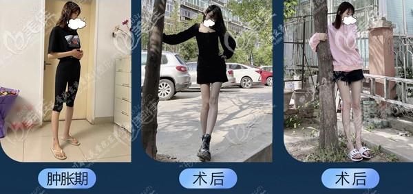 成都东篱大腿抽脂真实对比照片:吸脂完大腿根部的两坨肉不见了