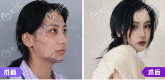 青岛华颜美医院超肋软骨隆鼻整形案例1