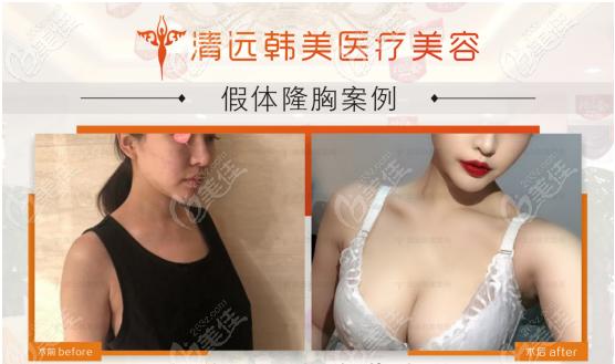 清远韩美医疗美容隆胸效果怎么样