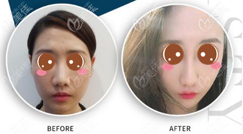 耳骨垫鼻尖多久鼻头能软?我做的鼻综合用了28天