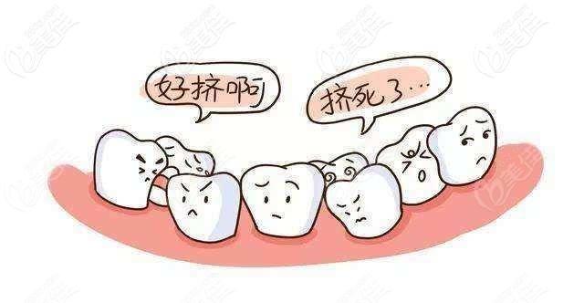 双排牙什么时候拔掉好呢