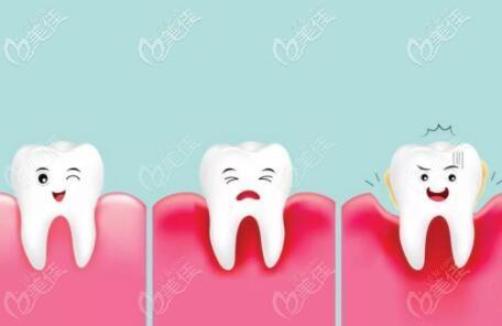 牙周炎导致的牙齿松动原因