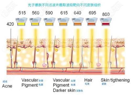 光子嫩肤的滤波片