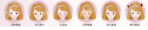 光子嫩肤不同波长改善效果不同