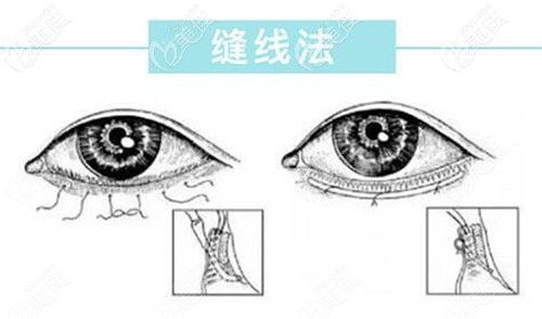 下眼睑倒睫手术的原理