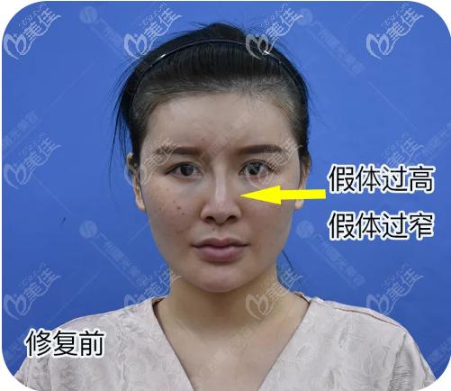 广州曙光整形美容医院王旭明术前照片1