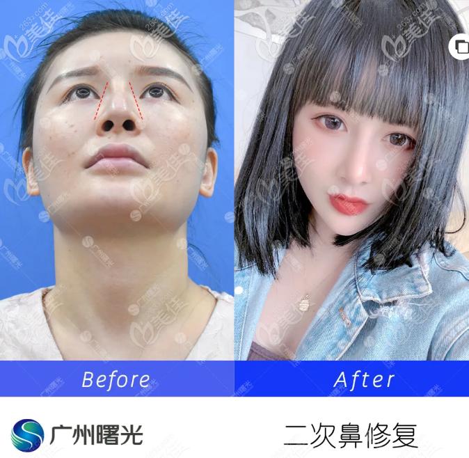 广州曙光王旭明二次鼻修复案例