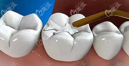 补牙用的树脂材料
