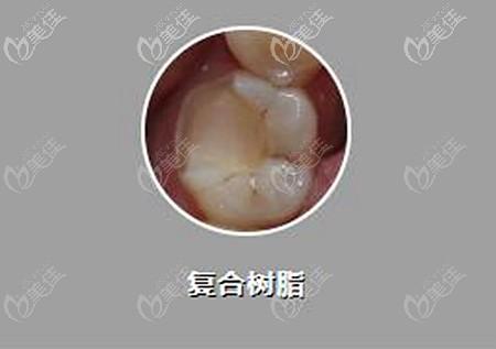 复合树脂补牙的价格
