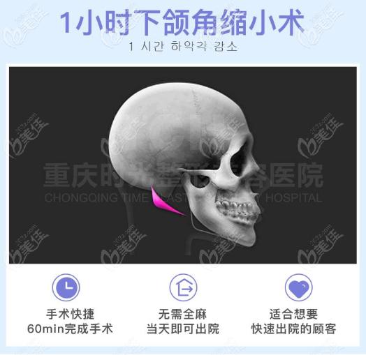 重庆时光姜民范1小时下颌角磨骨技术优势