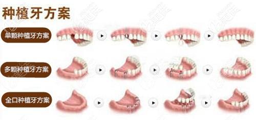 种植牙设计方案