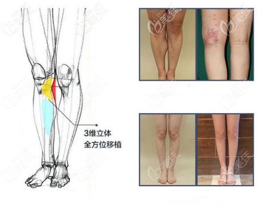 自体脂肪矫正腿型的图片