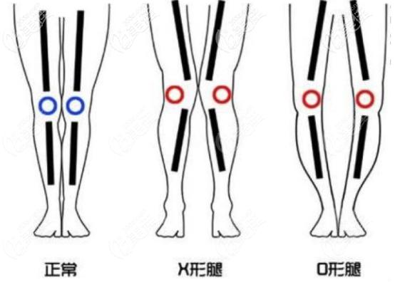 X腿型和O腿型的区别