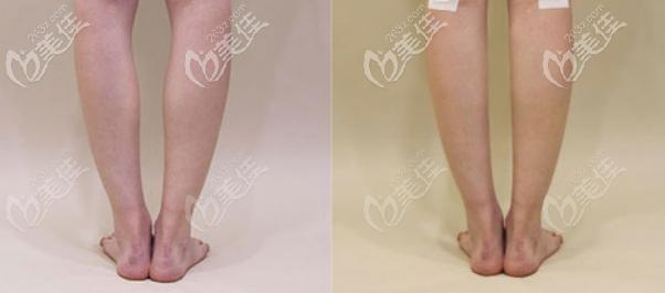 O型腿矫正图片