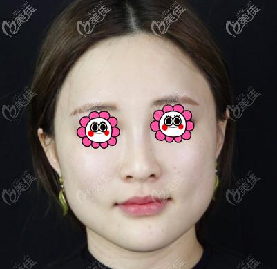 北京星灿宫医疗美容门诊部杜宁术前照片1