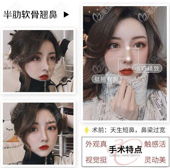 深圳艺兴文丰做鼻综合隆鼻子怎么样