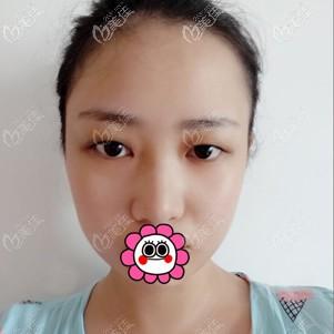 杭州华颜医疗美容门诊部周慎健术前照片1