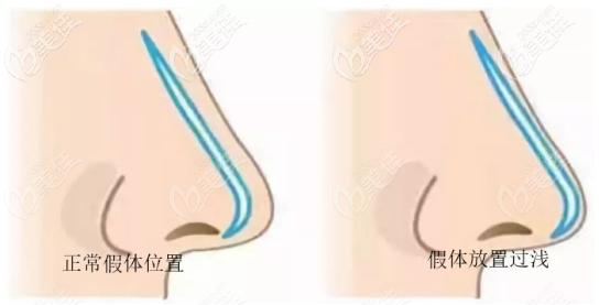 硅胶隆鼻假体应该防止的位置