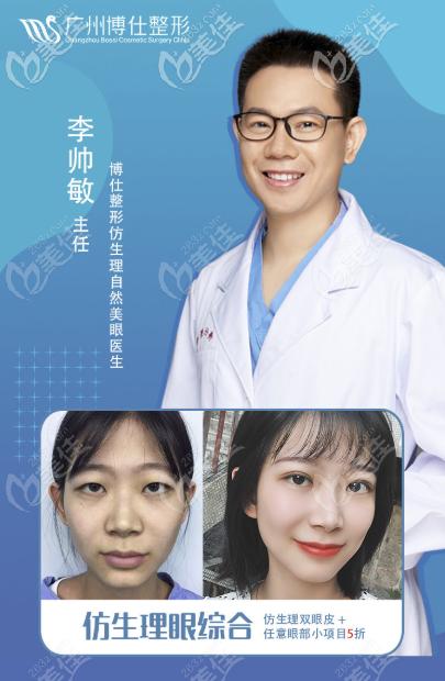 广州博仕李帅敏仿生理双眼皮案例效果图