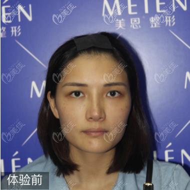广东广州美恩整形美容医院沈绍勇术前照片1