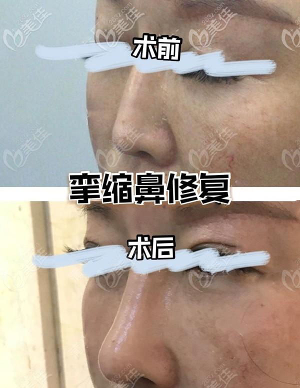 成都蒲兴旺整形医生隆鼻失败修复案例:鼻头挛缩还可以恢复吗