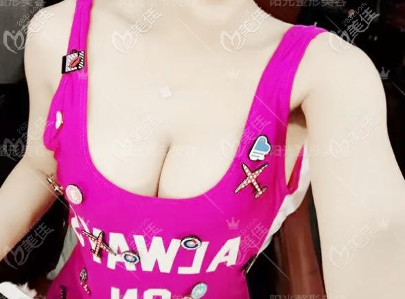 深圳陈星光医生隆胸案例公开,双平面假体隆胸技术真的很厉害哦