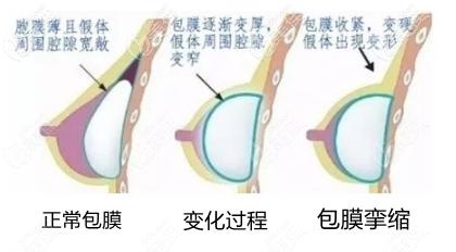 假体包膜形成过程