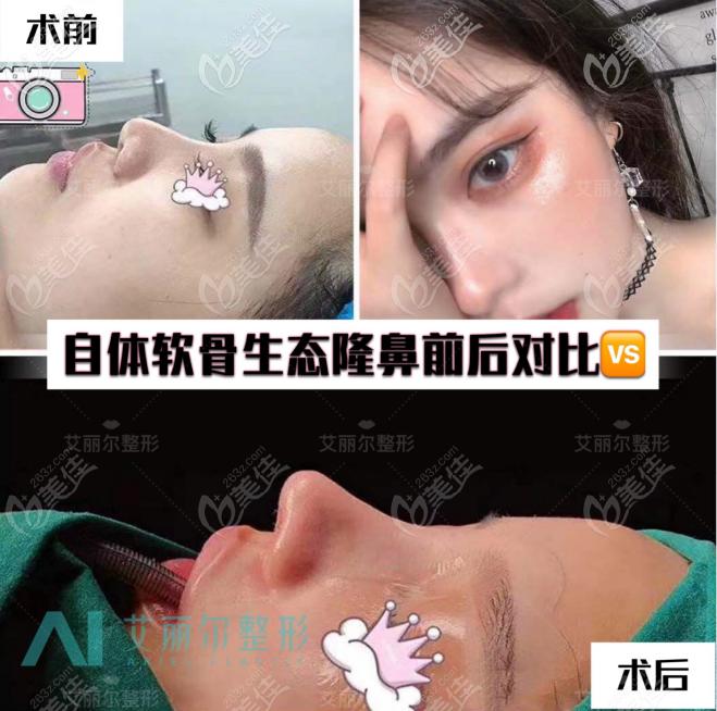 看案例了解班安华做鼻子怎么样