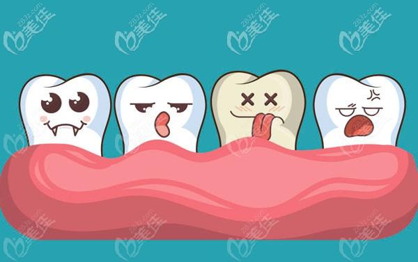 毕节朗朗口腔牙齿矫正案例
