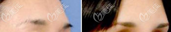硅胶假体丰眉弓效果图参考