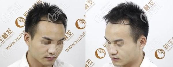 镇江新生植发术前照片1