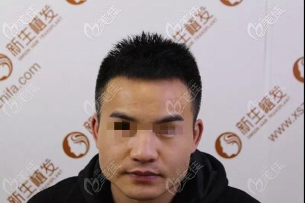 镇江新生植发术后照片1