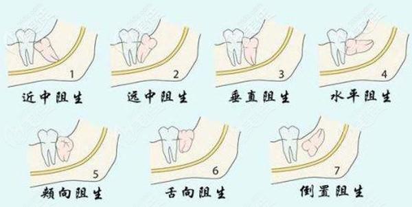 各种智齿阻生类型图