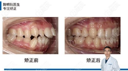 牙齿矫正效果对比