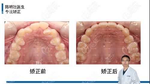 牙弓狭隘也有了明显的扩弓