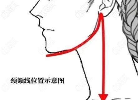 下颌缘位置示意图