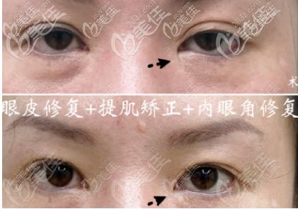 广州宸山医疗美容门诊部马松哲术后照片1