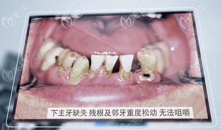 郑叔叔重度牙周炎牙齿情况照片