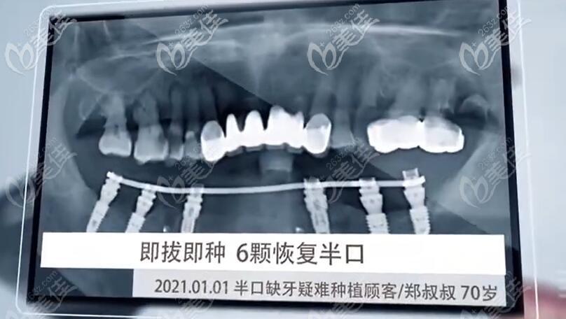 在常州北极星口腔做半口6颗种植牙后ct照