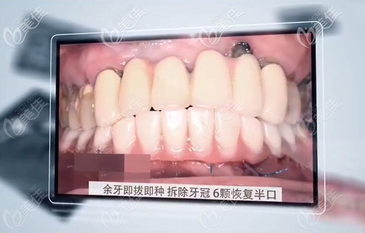 下半口6颗种植牙图片