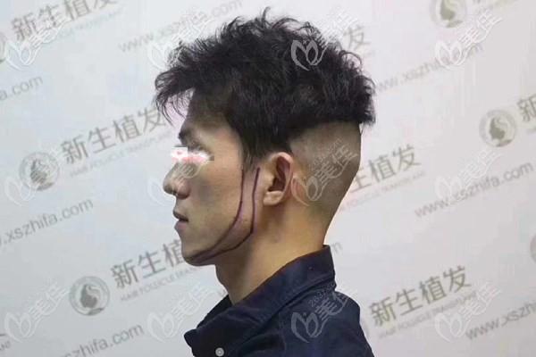 手术开始前剃除了后枕部毛发