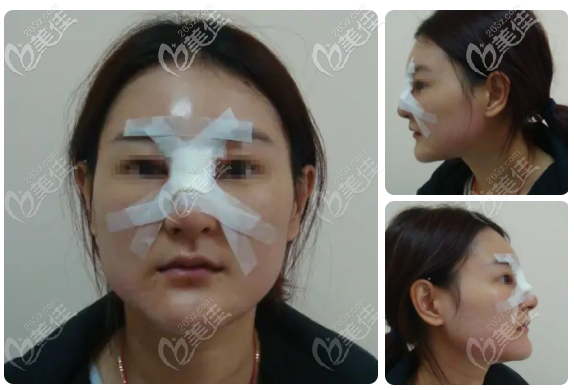 广州荔湾人民医院鼻子骨粉取出很靠谱