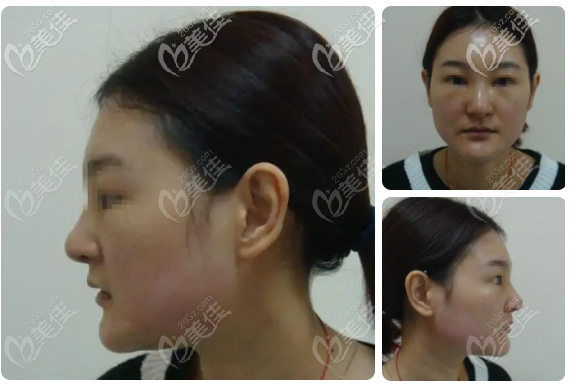 鼻子骨粉取出恢复过程图片